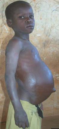fibro 1